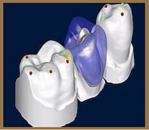 crown plaza-cad-cam-dental-home