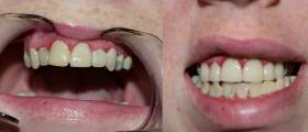 veneer-before-and-after